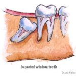 Wisdom tooth and reason for its extraction
