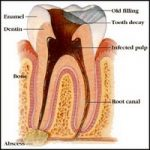 Abscessed Tooth - Causes, Symptoms & Treatments