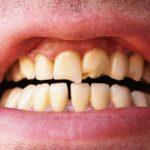 How to Stop Teeth Grinding