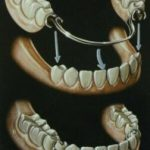 Partial Dentures Types Cost Problems
