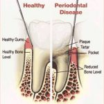 Periodontal (Gum) Disease – Causes, Symptoms & Treatments