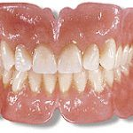 Which is better? Dentures or Dental Implants