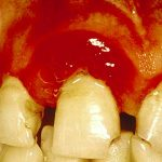 bleeding gums diabetes