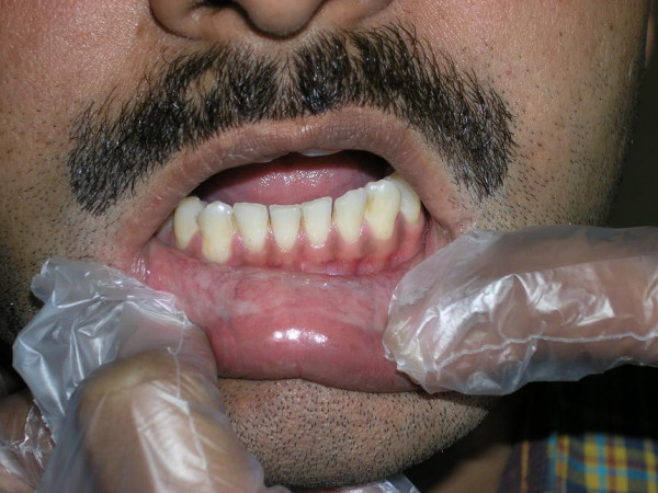 oral submucus fibrosis