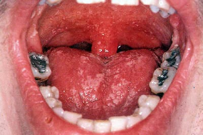 oral thrush infection