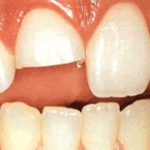 What is the Best Way for Broken Tooth Repair?