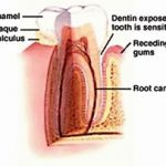 The Best Home Remedies for Sensitive Teeth