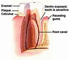 dentin tooth sensitivity