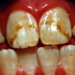 Dental fluorosis – Clinical features and treatment