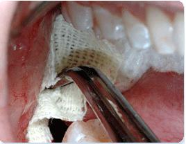 tooth gum pain after deep cleaning