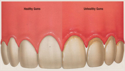 gum health difference