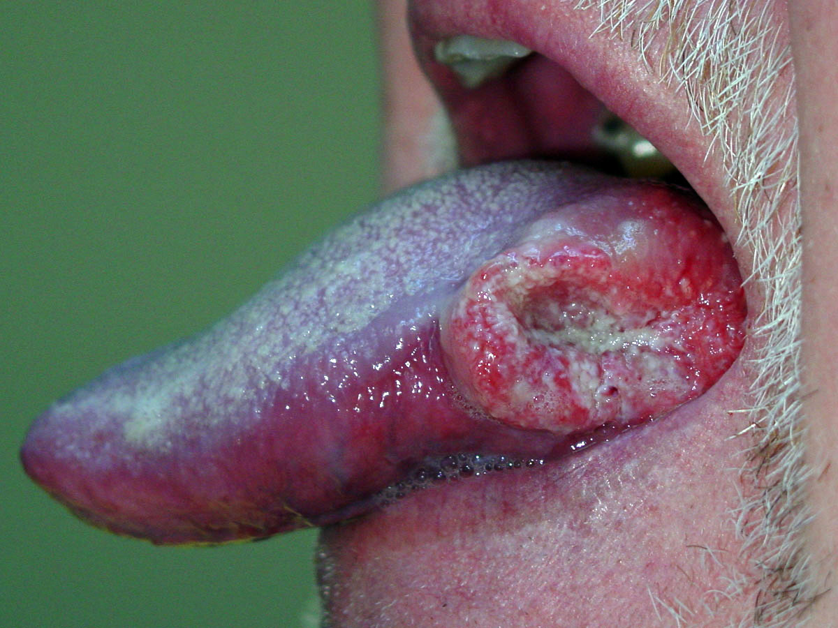 oral cancer due to tobacco