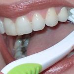 Guide: How to Have a Perfect Dental Health