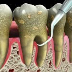 Scaling and Root Planning – Methods of Deep Teeth Cleaning