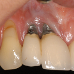 Problems associated with Dental Implant Placement