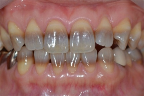 Teeth With Tetracycline Stains