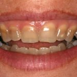 Tetracycline Tooth Stains – Causes, Prevention and Treatment