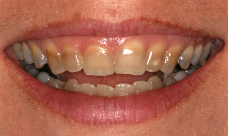 Tetracycline tooth stains