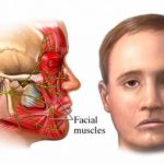 Facial Nerve Paralysis or Paresis due to Local Anesthesia (LA Complication) – Cause, Management