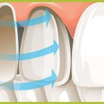 Dental Crowns or Veneers? Which is the best option for Discolored Teeth