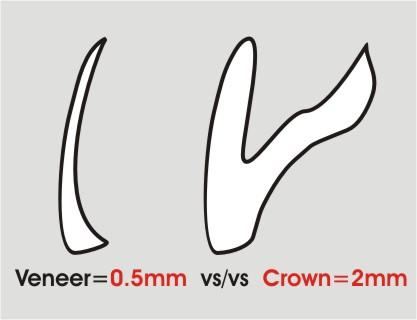 Dental Veneer vs Crown