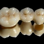 Permanent Dental Crowns? Are we supposed to guarantee the life of a crown?