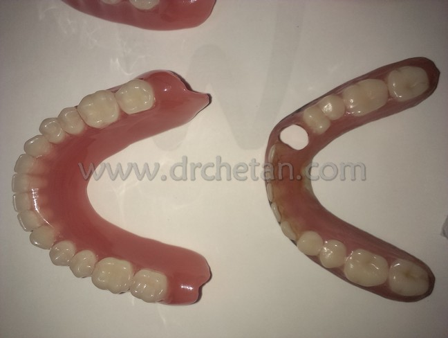 Normal Denture and Watcher 6