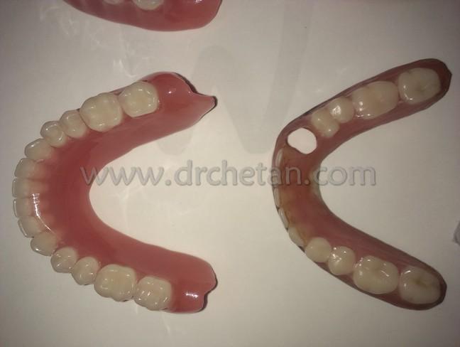 Normal Denture and Watcher 6
