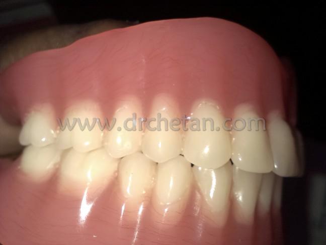 Normal Denture and Watcher 7