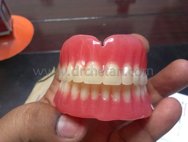 Normal Denture and Watcher 8