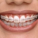 How to Prevent Braces Staining (Prevent Staining of Ceramic Braces)
